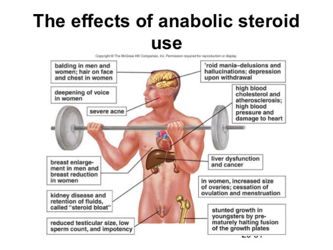 The Use (and Risks) of Anabolic Steroids in Sports