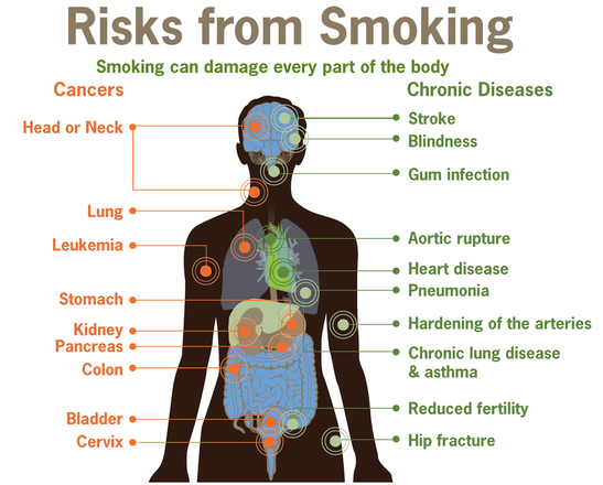 Tobacco Smoking including Health Effects of Tobacco, e.g., Chronic Obstructive Pulmonary Disease (COPD)